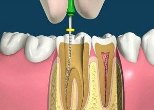 Лечение канала зуба