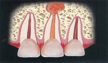 Острый серозный периодонтит