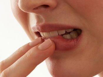 Медикаментозный периодонтит