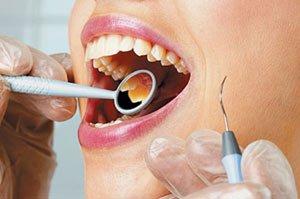 Цистотомия - лечение кисты зуба