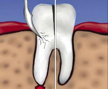 Гемисекция - лечение кисты зуба