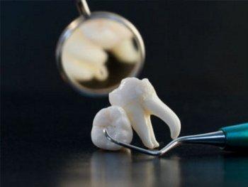 Атипичное удаление зубов и корней
