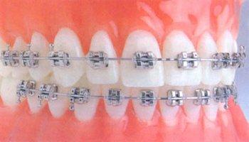 Неправильный прикус и имплантация зубов