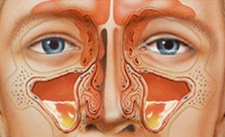 Хронический верхнечелюстной синусит