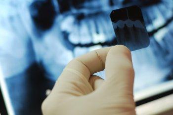 Исследования пародонта - рентгенологическое исследование