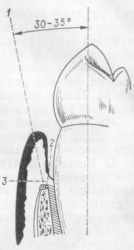 Лоскутная операция по технике Рамфьорда