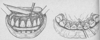 Гингивопластика по Киселеву