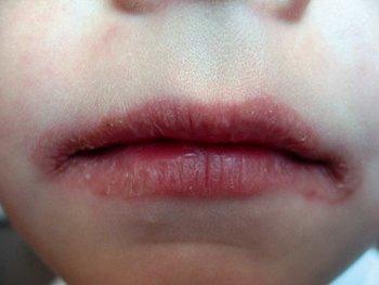 Контактный аллергический хейлит