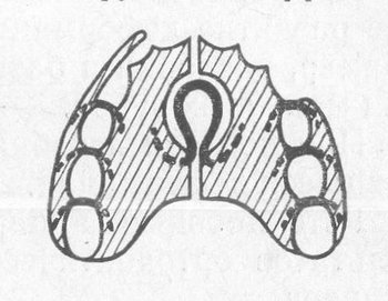 Ортодонтическая пластинка Коффина
