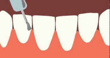 Глубокое фторирование зубов