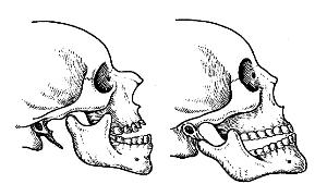 Вывих нижней челюсти