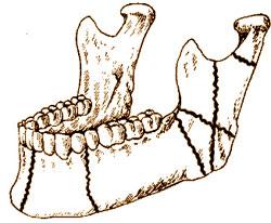 Повреждения костно-опорного скелета лица