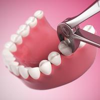 Осложнения при удалении зуба