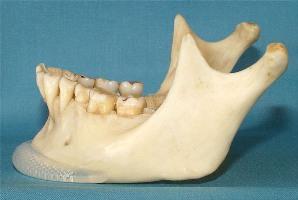 Эндопротезирование нижней челюсти