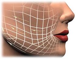 Коррекция асимметрий челюстей