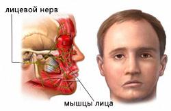 Повреждение лицевого нерва