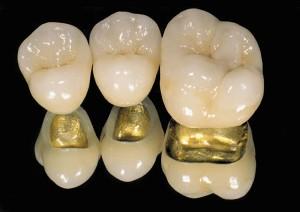 Золотокерамические зубные коронки